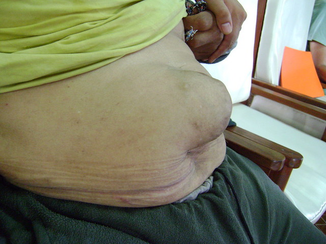 Large Ventral Hernia Flickr Photo Sharing