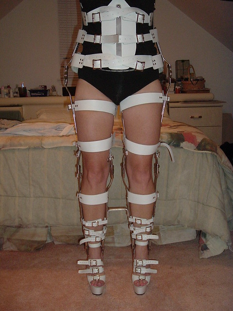 Full Front View of Braces Without Kneepads