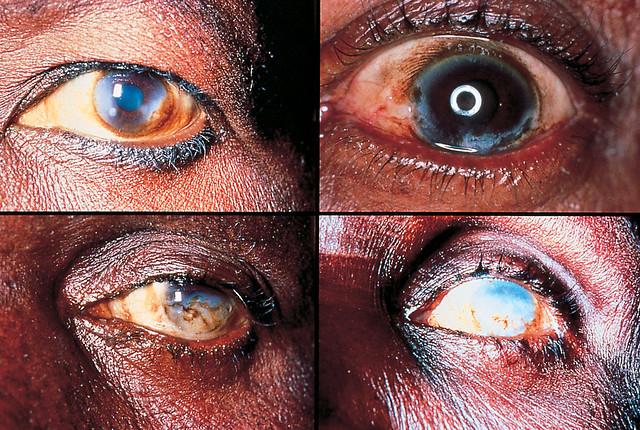 ONCHOCERCIASIS River Blindness