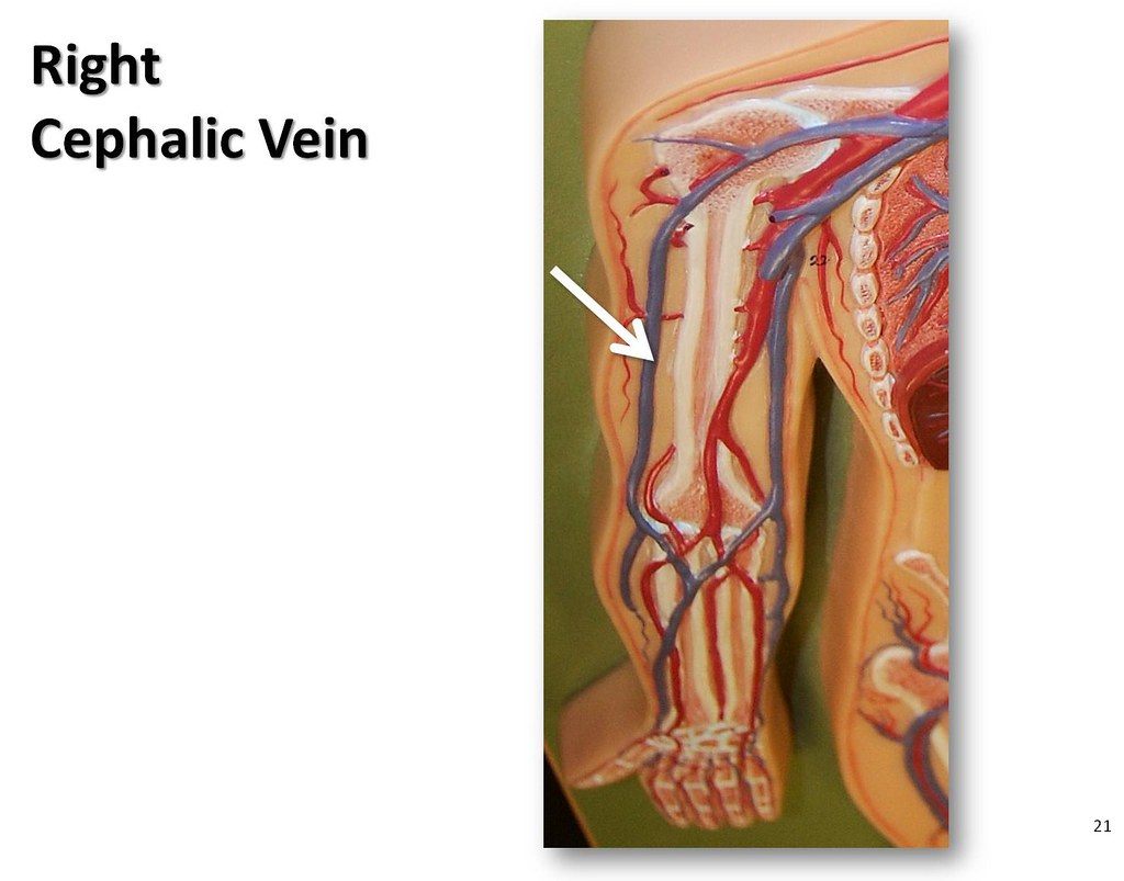 Right Cephalic Vein The Anatomy Of The Veins Visual Guide Page 21