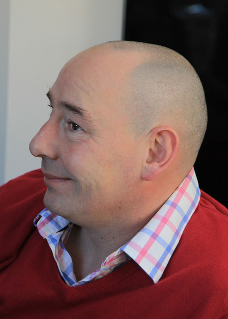My Uncle suffers from premature hair loss, it must be cold for him!