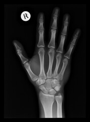 muscle(0.0), human body(0.0), radiography(1.0), hand(1.0), medical radiography(1.0), arm(1.0), finger(1.0), x-ray(1.0), monochrome photography(1.0), limb(1.0), monochrome(1.0), black-and-white(1.0), organ(1.0),
