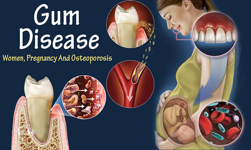 Gum Disease And Women, Pregnancy And Osteoporosis
