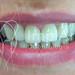 Coroas estéticas em porcelana metal-free nos dentes anteriores superiores