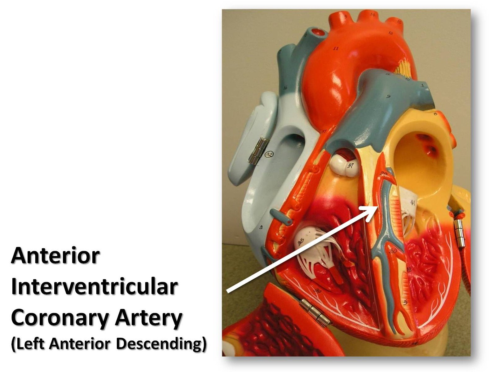 The gallery for --> Posterior Interosseous Artery
