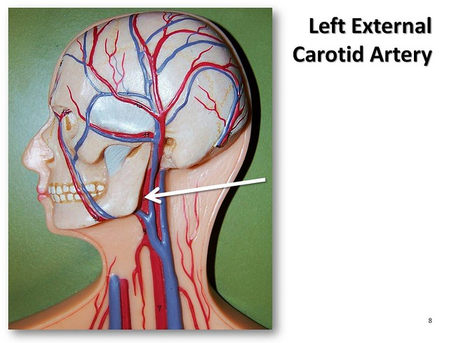 Left external carotid artery - The Anatomy of the Arteries Visual Guide, page 8 (of 57)