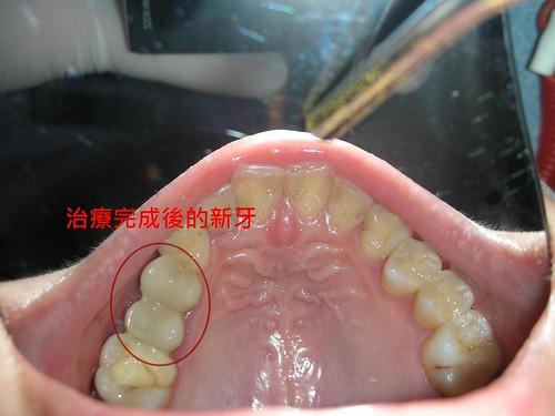 豐美牙醫診所-3D齒雕3