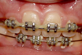 Braces on Teeth
