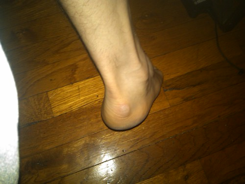Heel injury 2