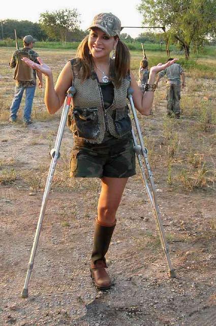 One Leg Amputee Woman