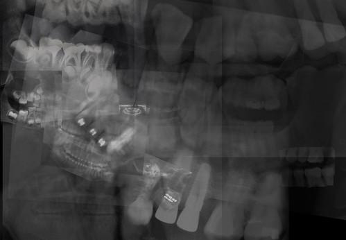 dental bone