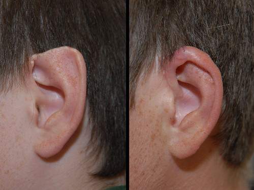 This 13 year old male had the top of his ear bitten off by a dog several years before. The following photo shows his ear 2 months after it had been reconstructed.