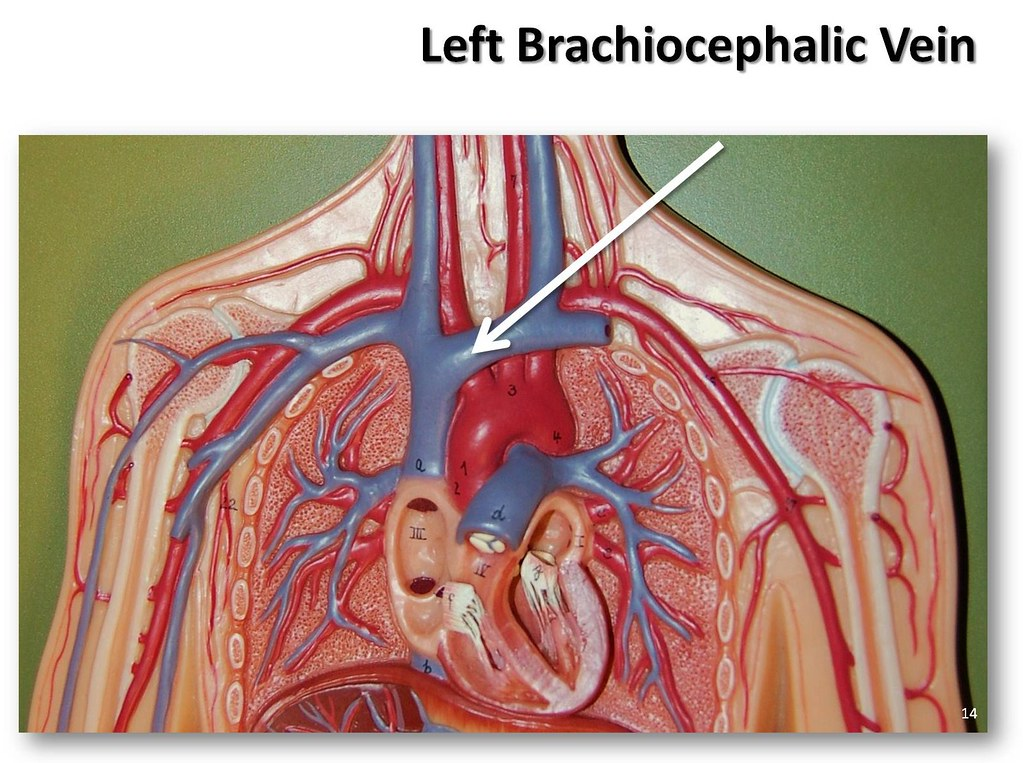 Left Brachiocephalic Vein The Anatomy Of The Veins Visua Flickr