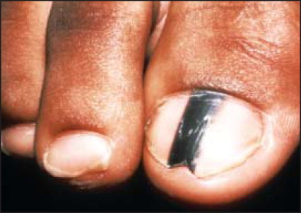 Mole Under the Toenail or Fingernail - The Complete Diagnosis Guide!