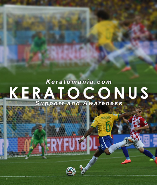 Keratoconus Vision Simulation - 2014 FIFA World Cup (1)