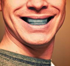 teeth whitening photo