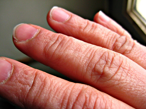 332 of 365- Raynaud's Syndrome... | by Pahz