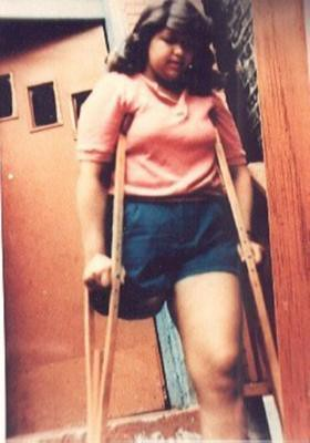 SAK Amputee Women With Wooden Crutches 2 - a gallery on Flickr