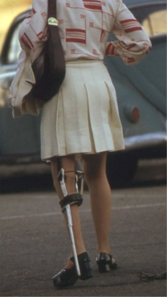Paraplegic lady dangling legs 4