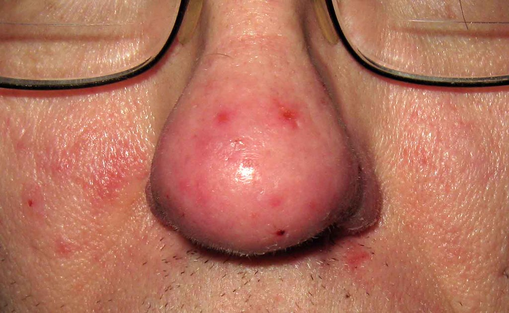 Minocin Acne Before And After