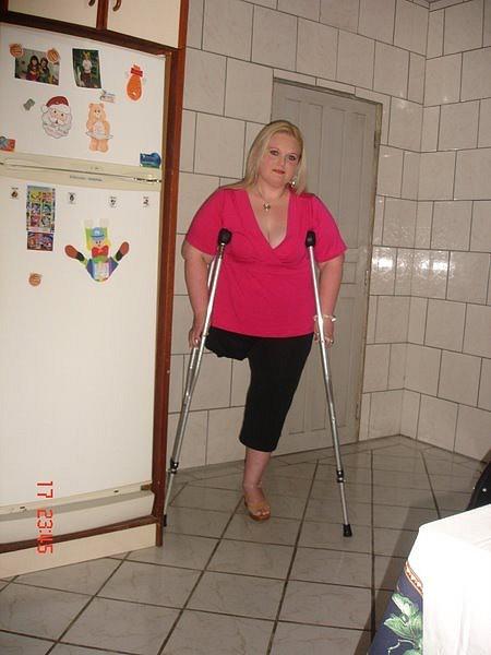 Sak Amputee Women On Crutches Images-6963
