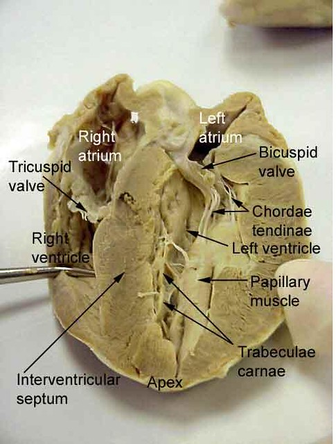 Neonatal Cranial Us From A To Z furthermore Human Anatomy And Physiology Blood Human Body Organs Diagram Back View additionally The Heart And Blood Vessels furthermore 692713 besides Blood Flow Through The Brain Pt 2 The Ride To The Top. on brain anatomy and physiology arteries
