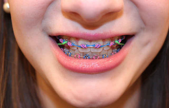 Braces 8 Cotton Candy I M Back On Rubber Bands I Hate