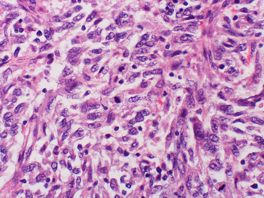 Metastatic melanoma  Case 171