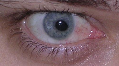 [Goofy pupil]