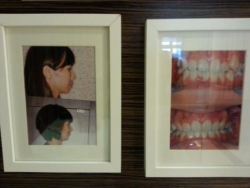 黃經理牙醫診所三樓矯正診間的成果展示照3