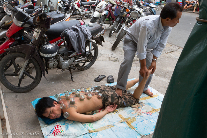 Man gets cupping therapy on Saigon sidewalk.