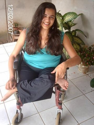 Pretty Women in Wheelchairs Amputee