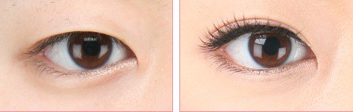 Double-eyelid Surgery: Before and After