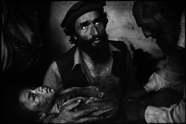 Man holds boy wounded by shrapnel from U.S. airstrike, Kunar Afghanistan, by Balazs Gardi 2007