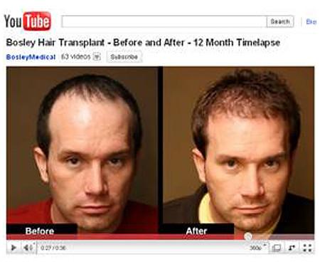 Michael's 12 Month TimeLapse- Bosley Hair Restoration procedure