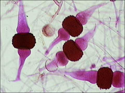 Rhizopus stolonifer-2 | Flickr - Photo Sharing!
