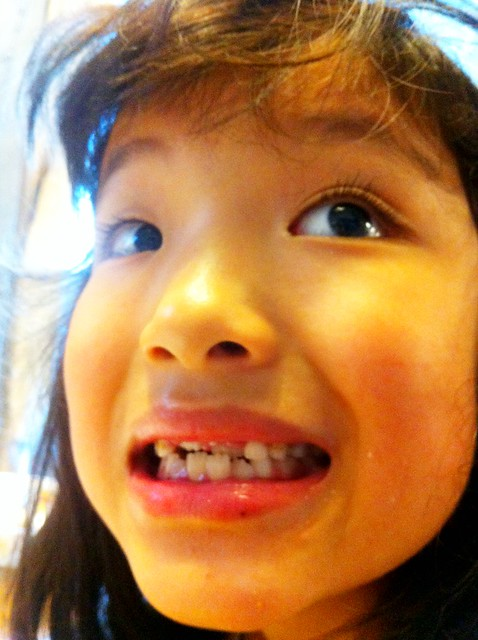 前歯が3本無い志穂