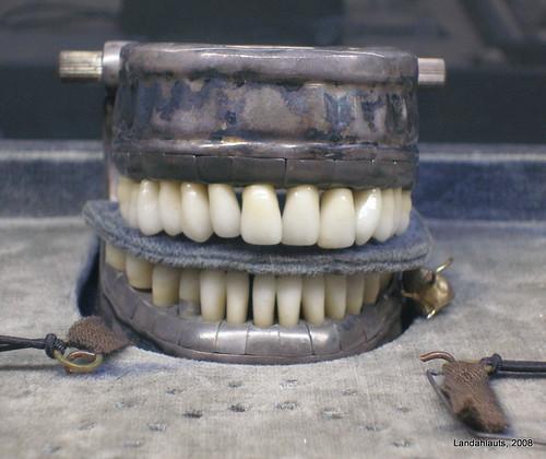 Historia de los implantes dentale
