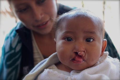 Cleft Palate surgery, Guatemala - Photographer Ashli Akins