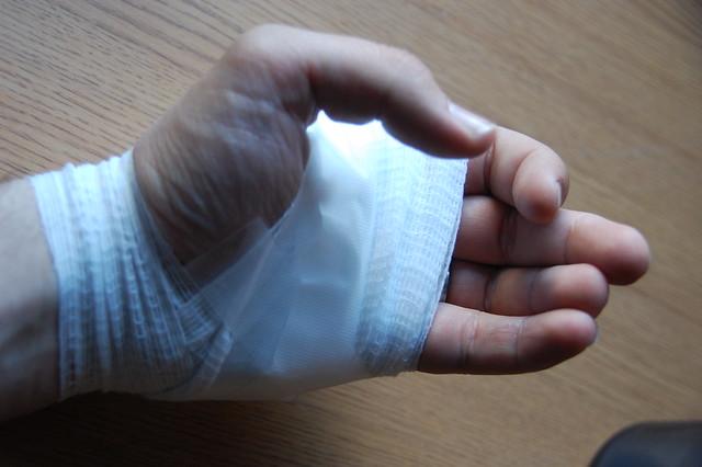 Bandaged Hand | Flickr - Photo Sharing!