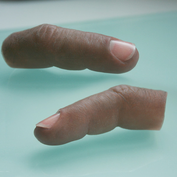 How Much Do Prosthetic Fingers Cost?