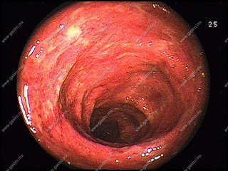 Colitis Ulcerativa Crónica  CUCI