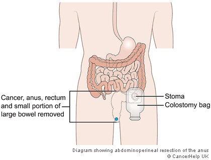 abdominoperineal resection diagram index listing of wiring diagramsabdominoperineal resection of rectum an abdominoperineal r\\u2026 flickrabdominoperineal resection of rectum by jennifer stone1