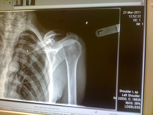An x-ray can show a broken collar sustained in an accident that was not your fault
