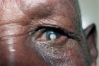 Mature cataract.
