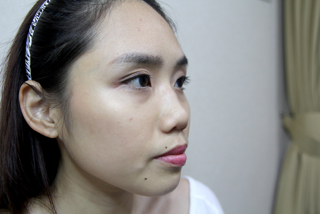 Why I Chose to Give Nose Fillers Another Go — CARRIE SIM