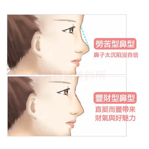 美妍醫美-蘇毓彬醫師隆鼻8