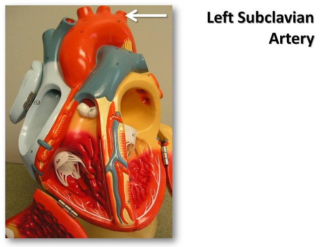 Left subclavian artery, anterior view - The Anatomy of the ...