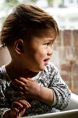 子供は皮膚が薄いのでかゆくなりやすいので注意