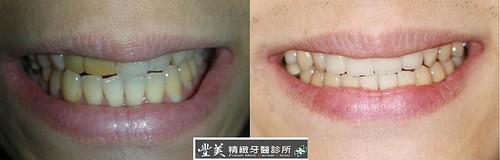 台中豐美牙醫診所 拍婚紗之牙齒美白案例2